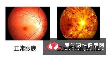 老人出现视力模糊现象需预防这些眼疾