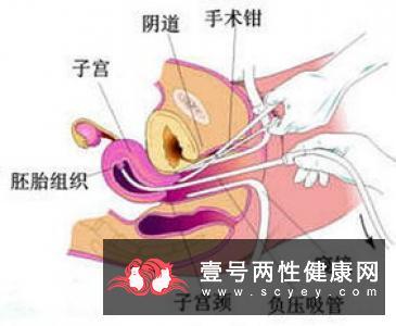 免疫性不孕的治疗方式