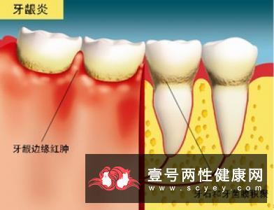 治疗牙龈出血的偏方有哪些?