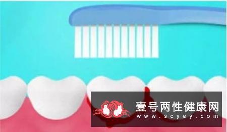 牙周病置之不理,你觉得会怎么样?