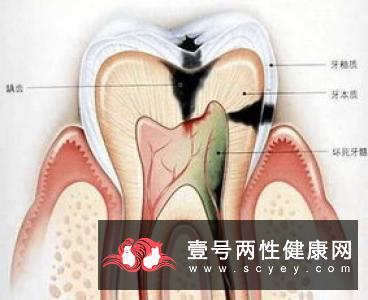 防治牙龈炎的一些日常小贴士
