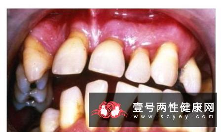 引起牙龈出血的常见病因?