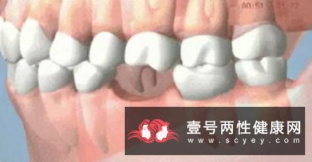 """牙周病防治得好,""""老掉牙""""不再必然!"""