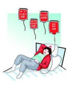 哪种血型配对不能生育