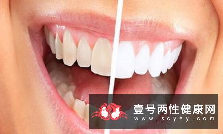 牙龈出血是牙龈炎吗