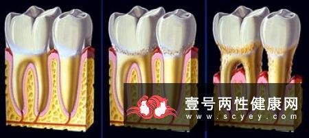 牙周炎发病有哪些症状表现?