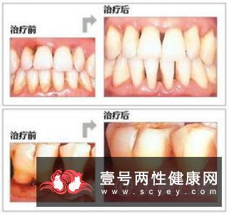 牙龈经常出血是什么原因呢