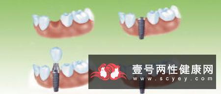 牙周病是中老年人牙齿缺失的主要杀手!