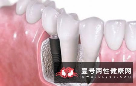 牙周病置之不理,等着牙齿和你说再见!就麻烦大了!